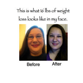 weight loss after implanon removal